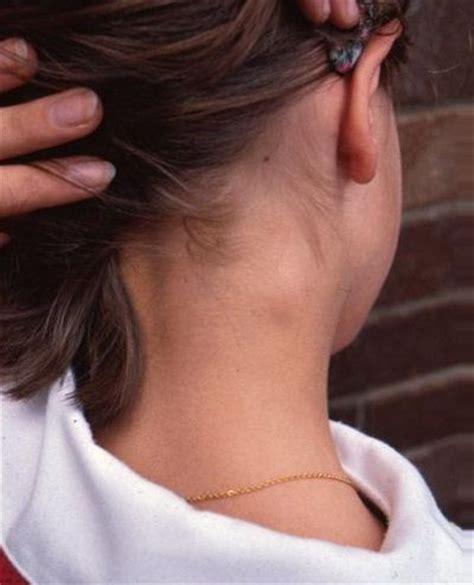 swollen neck how to reduce swollen lymph nodes in neck