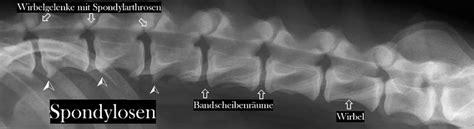 herzrhythmusstörungen beim liegen auf der linken seite r 252 ckenschmerzen anzeichen f 252 r herzinfarkt