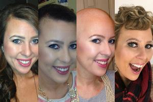 cancer chemotherapy and hair loss why it matters cancer chemotherapy and hair loss why it matters