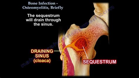 bone infection osteomyelitis briefly
