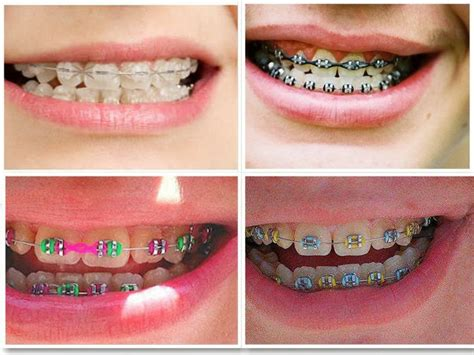 How To Make Braces With Paper - braces pictures damon braces