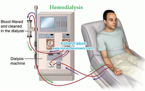 Alat Cuci Darah Capd Herbs For On Dialysis Kidney Failure