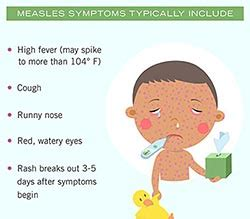 measles | signs and symptoms | cdc