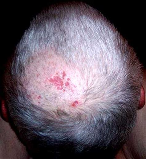 i want to see the shingled back of hairstyles shingles virus photos and description vaughn s summaries