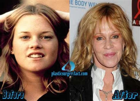 Melanie Griffith Looks Like Hell by 17 Best Ideas About Melanie Griffith Plastic Surgery On