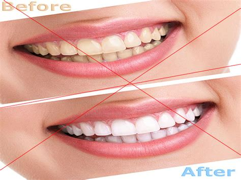 teeth whitening longview tx tooth bleaching dentist