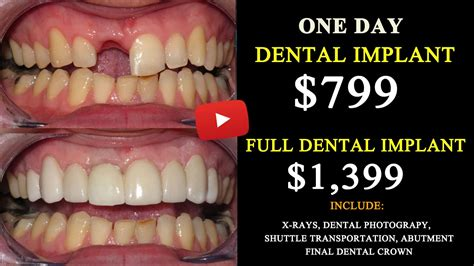 for dental implants in mexico all on 6 dental implant cost in tijuana mexico save up 75