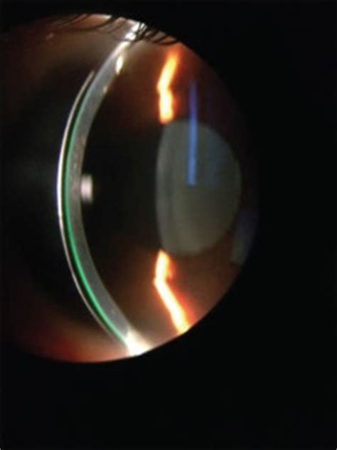 Softlens Glow In The Series Illuminant Lense Normal Only scleral lens benefits for patients you see every day blanchard contact lenses