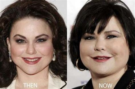 Younger Image Plastic Surgery