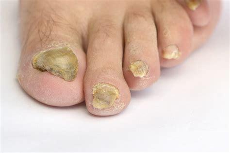 Fußnägel Lackieren Bei Nagelpilz by Das Nagelwachstum Geschwindigkeit Beeinflussungen