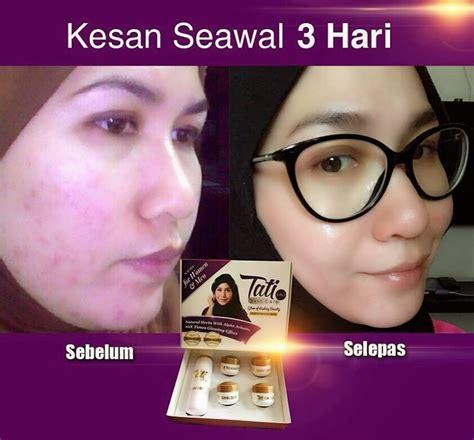 Exclusive Bb Day Sunblock Whitening Sunblock Glowing Miztomey Biz Tati Skincare