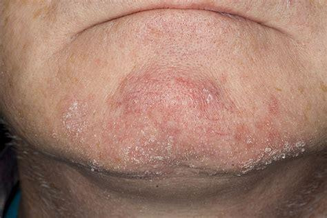 natural treatment for seborrheic dermatitis cradle cap seborrheic dermatitis dandruff cradle cap and adult