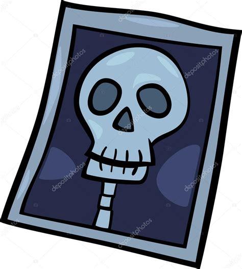 imagenes animadas rayos x rayos x foto clip art dibujos animados ilustraci 243 n