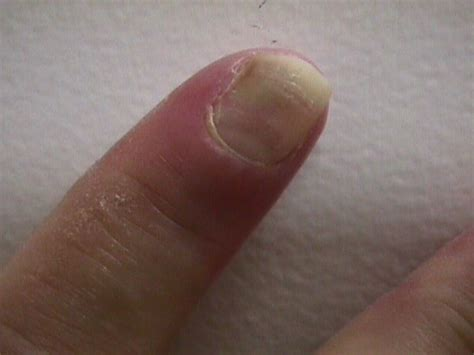 infected fingernail bed infected toenail bed 28 images nail bed infection