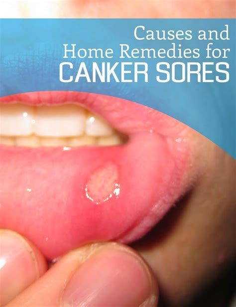 1000 ideas about remedies for canker sores on