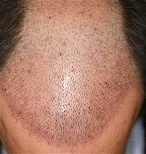post hair transplant timeline photos hair loss after hair transplant where did my grafts go