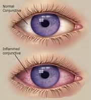 corneal abrasion premium laser refractive center in