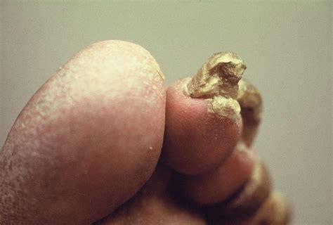 Kitchener Podiatrists by Nail Pathologies Saskatchewan Podiatry Association
