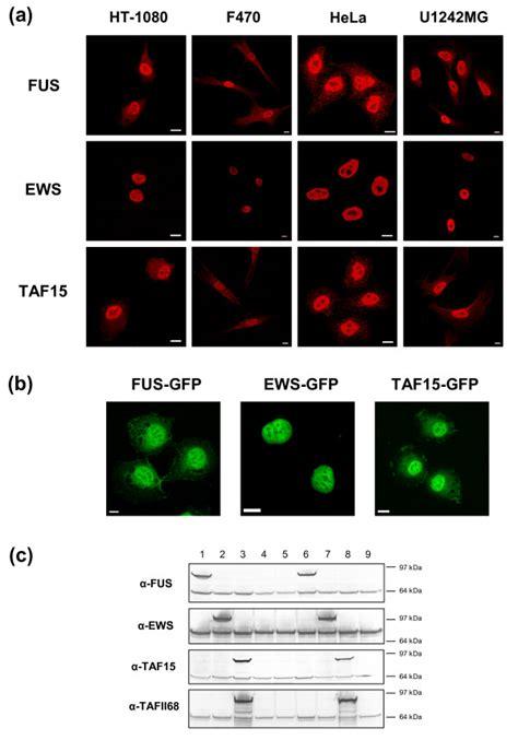 protein localization fet protein localization in cultured human cells a