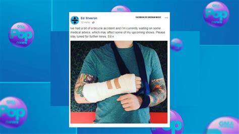 ed sheeran arm ed sheeran posts photo of broken arm after bicycle