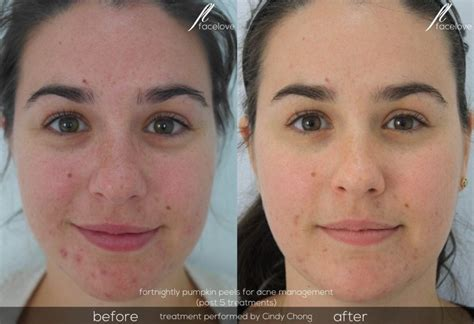 light chemical peel before and after resurfacing peels facelove