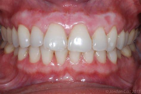 gum bleaching improve  appearance   dark gums