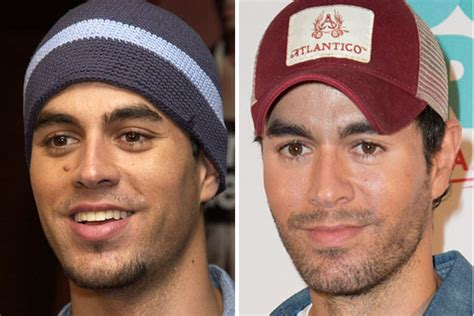 Enrique Didnt Up With by 10 You Didn T Had Plastic Surgery Reshareable