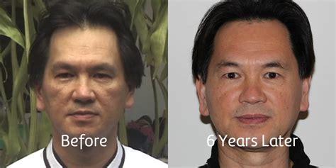Wuchu Detox Before And After by Wuchu Detox