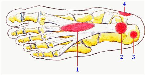 dolore al tallone parte interna dolore al piede fascite plantare