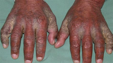 scabies black scabies symptoms pictures and diagnosis