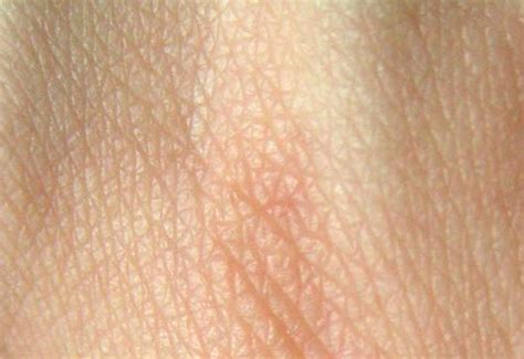 lump s skin that skin lumps learn from doctors on healthtap