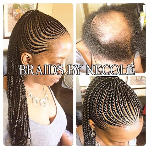 braid styles for alepicia 14 extraordinary alopecia camouflage cornrows by braids by