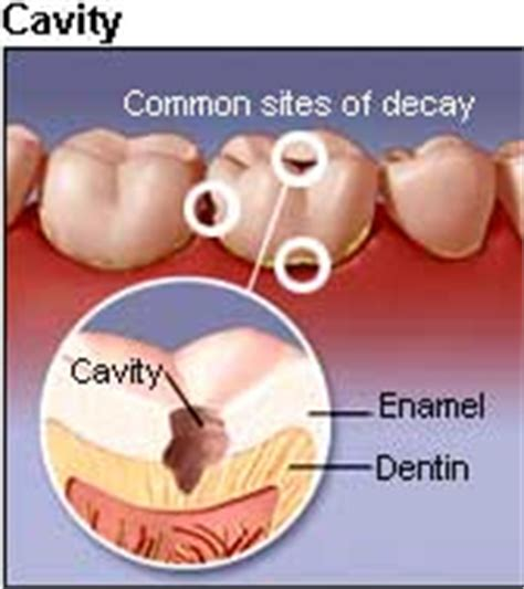 comfort dental root canal cost dental filling india cost dental cavity fillings india