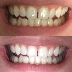 Best 25  Fast teeth whitening ideas on Pinterest