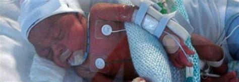 sondino gastrico per alimentazione medico inserisce sondino gastrico a neonato ma gli buca il