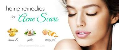 Home Remedies For Acne by 44 Natural Home Remedies For Acne Scars On Face Amp Body Fast