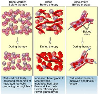 anemic treatment sickle cell anemia treatment management approach considerations hydroxyurea