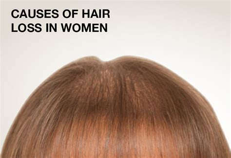 what causes hair loss in women over 50 hair loss in