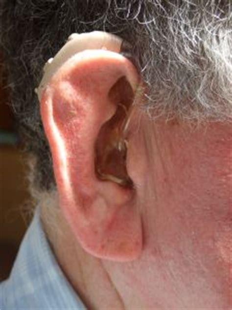 soin des oreilles bouchon de c 233 rumen