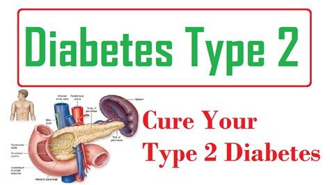 diabetes the real cause and the right cure books best cure for diabetes