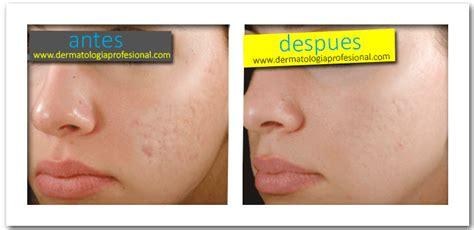 tratamientos tratamientos para las manchas 1foto antes despues acne cicatrices dermatologo df