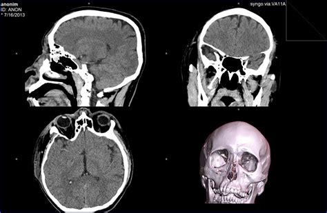 Alat Mri materi radiologi perbedaan rontgen ct dan mri