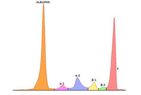 protein electrophoresis serum serum globulin the doctor