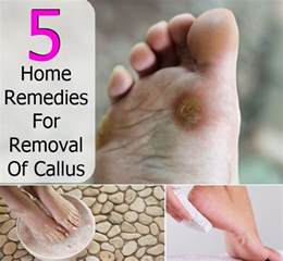 5 home remedies for removal of callus diy home remedies