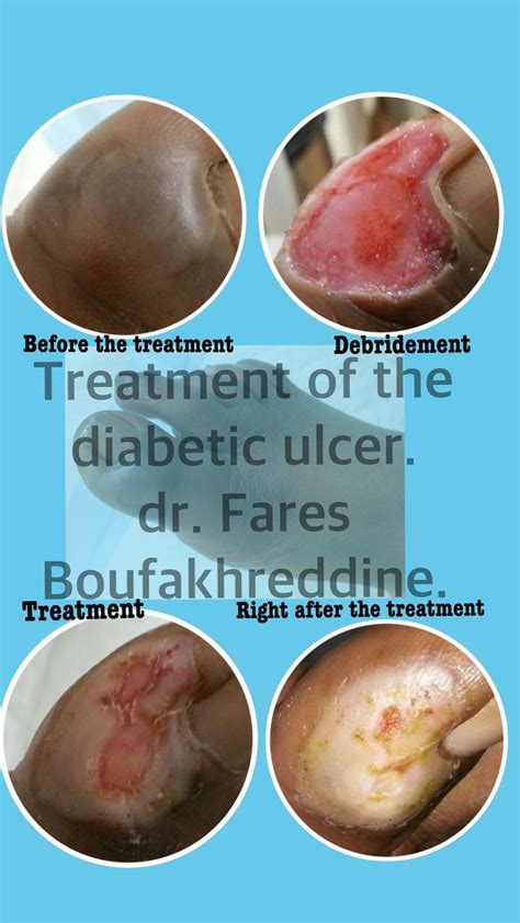 86 best images about foot ulcer information on