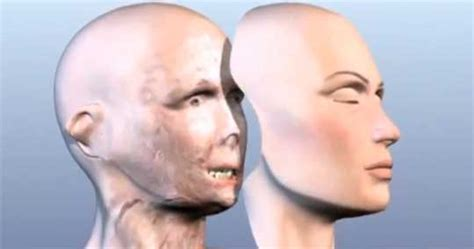 carmen tarleton carmen tarleton reveals new face after transplant surgery
