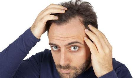 do bangs look better for balding hair comment lutter contre la chute des cheveux l express