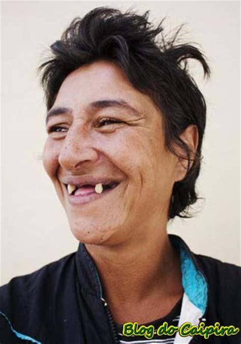 imagenes de negras sin dientes candeias mg casos e acasos o contador de piadas