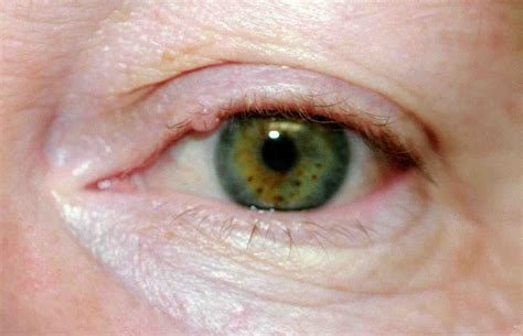 cyst on s eyelid eyelid cyst chalazion removal causes symptoms treatment eyelid cyst chalazion