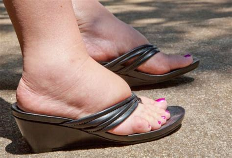 is it normal to have swollen feet after c section foot problem pictures sore feet heel pain and more with